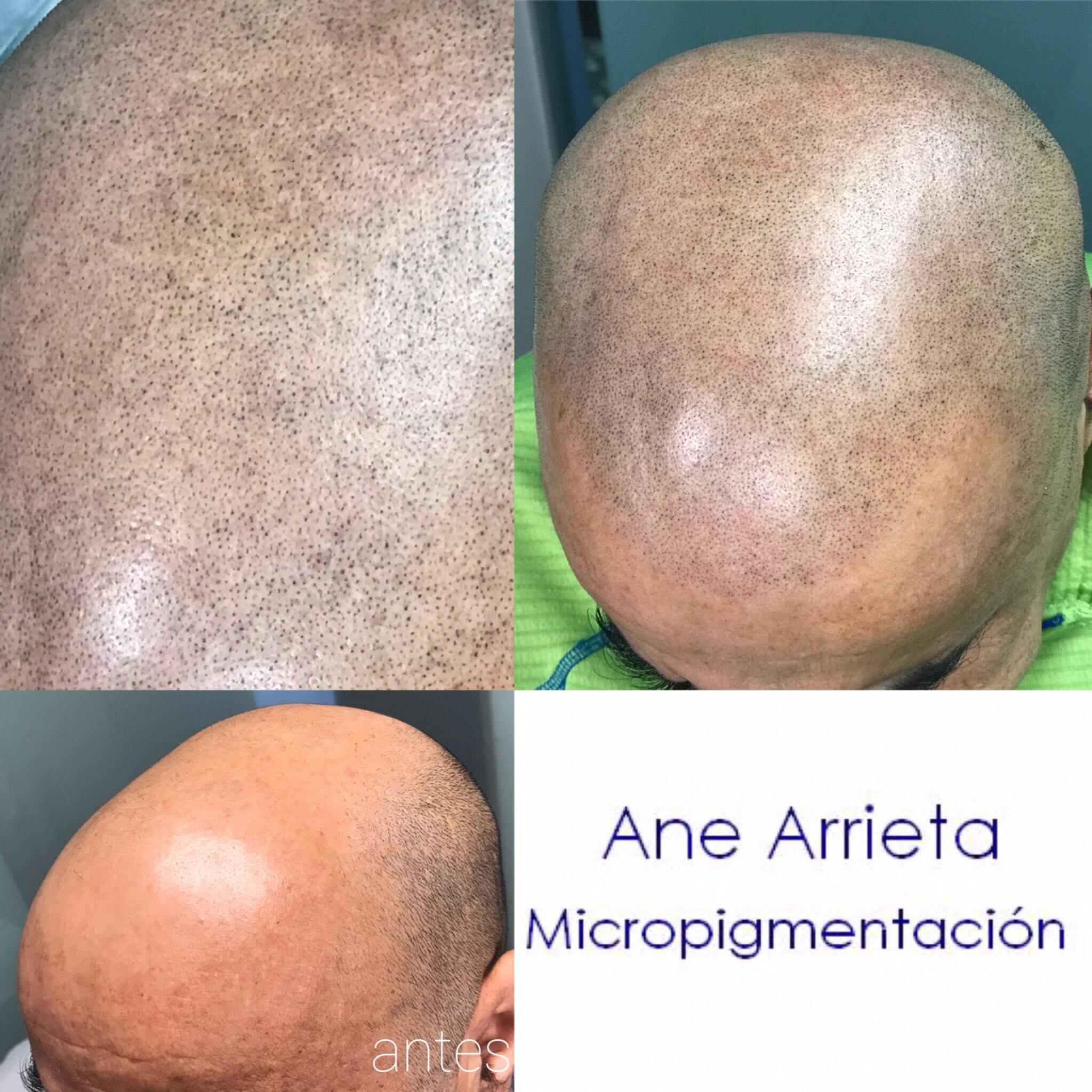 Micropigmentación capilar Eugenia Arrieta Micropigmentación