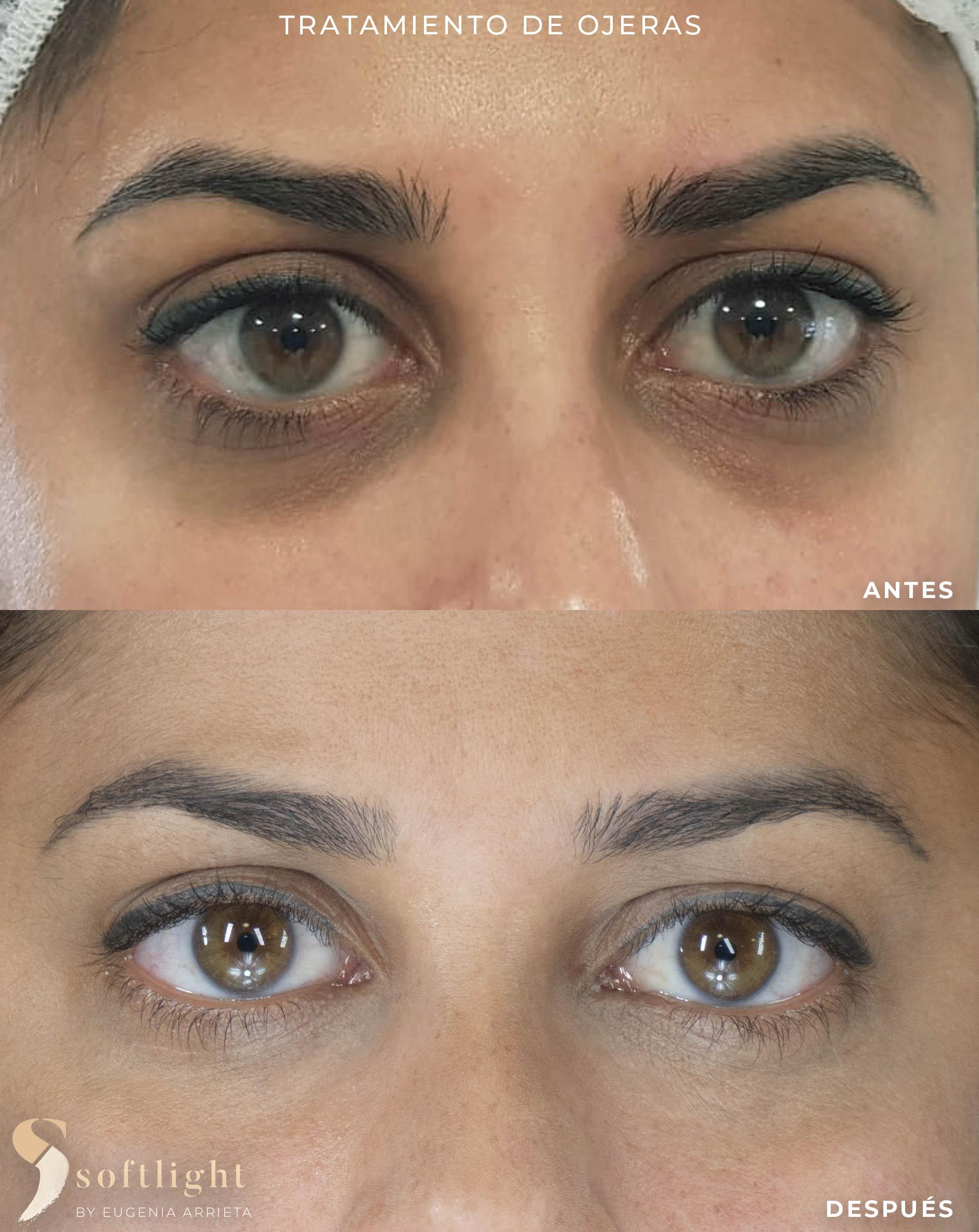 Arrieta micropigmentación SOFTLIGHT (de ojeras)